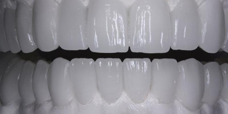 diagnostic-wax-up
